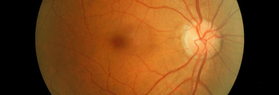 point aveugle d'un oeil humain (point clair à droite)